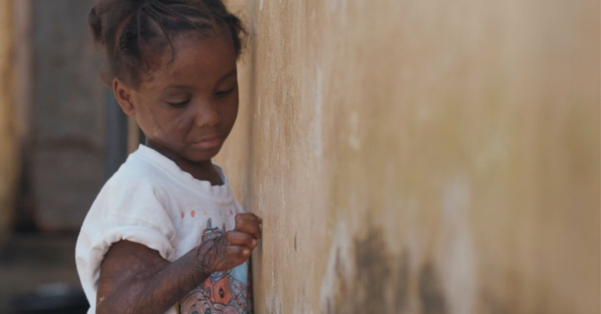 Mercy Ships Helps Gamai Reach for a New Life